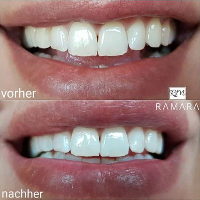 Zahnaufhellung1